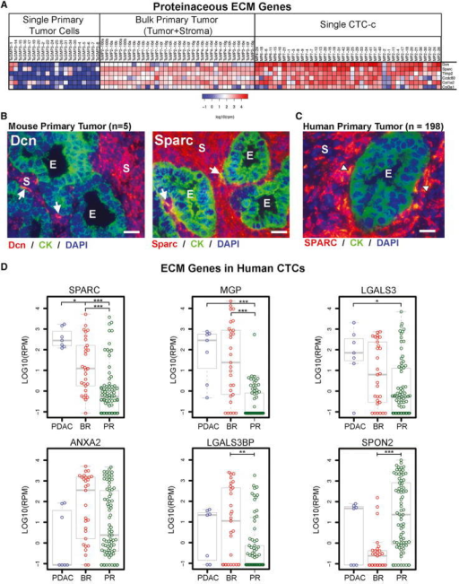 Human and Mouse CTCs across Different Epithelial Cancer Express High Levels of ECM Protein Genes(A) Expression heatmap of mouse single primary tumor cells, bulk tumor, and CTCs for ECM protein genes. Scale in log10(rpm).(B) RNA-ISH of ECM protein genes Dcn and Sparc with CK (Krt8+18) in mouse primary PDAC tumors.(C) RNA-ISH of SPARC with CK (KRT7,8,18,+19) in human primary PDAC tumors. Arrowheads identify dual-positive cells at the epithelial-stromal interface (E, epithelial; S, stromal) with DAPI nuclear stain (blue). Images taken at 400× magnification (scale bar represents 20 μm).(D) Expression boxplot of highly expressed ECM genes in human PDAC, breast (BR), and prostate (PR) CTCs. Bar, median; boxplot, quartiles; scale in log10(rpm). Holm-adjusted p value < 0.05 (*), 0.01 (**), 0.001 (***).