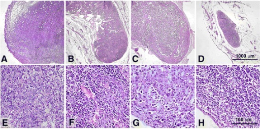 Histological images of tumors and lymph nodes. Subcutaneously transplanted mouse sarcoma 37 on day 15 of tumor growth (a,d). Metastatic ipsilateral inguinal lymph nodes on the day 30 of tumor growth in control mice (b,c,f,g). Images show tumor cells infiltrating lymph node parenchyma (f) and totally replacing lymph node tissue (g). A lymph node taken on day 30 after the beginning of the treatment from a mouse treated with TKmGM/GCV (h); note that its parenchyma is free of tumor cells. The sections are made through the largest cross dimension of the tissue samples. Low-power field images (a-d, 40×) demonstrate differences in size between positive (metastatic) and negative (metastasis free) lymph nodes. High-power field images (e-h, 400×) represent detailed histological features of the specimens. Formalin fixed and paraffin embedded tissues (H&E staining).
