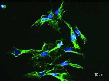 Immunofluorescence staining of myoblasts isolated from skeletal muscle of the rat in vitro. Green: desmin (muscle specific cytoskeleton), blue: nuclei, DAPI counterstain, 400× magnification.
