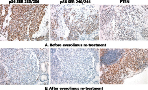 Immunohistochemical (IHC) staining for pS6 (serine 235/236 and serine 240/244) and PTEN was performed just before and during the everolimus re-treatment. All photographs were taken at 200 X magnification. Before everolimus re-treatment, the tumor cells exhibited strong positivity for pS6 in more than 50% of the tumor, whereas PTEN was weakly positive in tumor cells compared with the internal controls of endothelial cells (A). After 2 months of everolimus re-treatment, the tumor cells in the follow-up biopsy were completely negative for pS6. However, the intensity of PTEN was notably increased in all tumor cells (B).