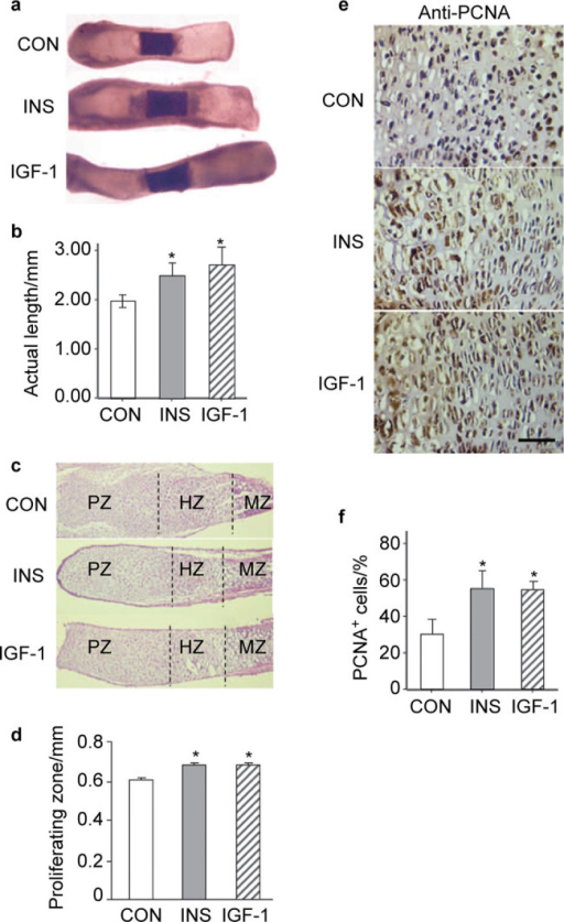 Insulin promotes growth of fetal metatarsal bones in vitro. (a) Metatarsalbones from E17.5 wild-type mouse embryos were cultured for 6 days in the absence or presence of insulin or IGF-1. (b) Quantitation of the actual length of metatarsal bones from (a) as shown. *P<0.05, n=6. (c) Representative histological images of metatarsal bones treated with insulin or IGF-1, with none treatment as control. PZ, proliferating zone; HZ, hypertrophic zone; MZ, mineralizing zone. (d) Quantitation of the proliferating zone of the cartilage rudiments from (c). *P<0.05, n=6. (e) Representative histological sections of metatarsal bones treated with insulin or IGF-1 after staining with antibody against PCNA as described in the section on 'Materials and methods'. Sections were counterstained with hematoxylin. Scale bar=50 µm. (f) Quantitation for the percentage of PCNA+ cells from (e). *P<0.05, n=6. IGF-1 treatment shows more dramatic effects on the total length in the cultures as positive control. CON, none treatmentcontrol; IGF-1, insulin-like growth factor-1; INS, insulin.