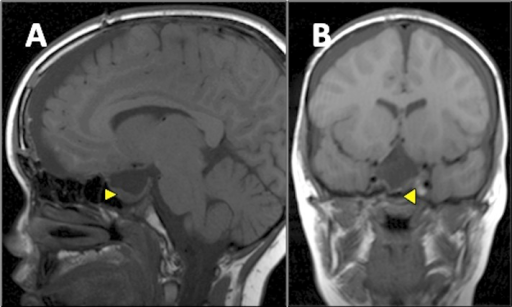 Postoperative T1-weighted MRI brain (sagittal view [panel A], coronal view [panel B]) Shows subtotal resection of the craniopharyngioma with only a small intrasellar residuum (arrowhead).
