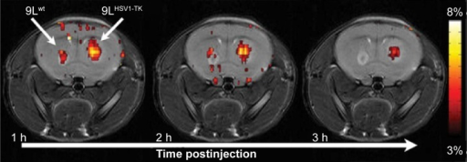 High-resolution MRI images.Notes: Brain has two tumors, a control (wt) and a glioma expressing a recombinant MRI reporter HSV1-TK, highlighted using CEST imaging.Abbreviations: MRI, magnetic resonance imaging; HSV1-TK, herpes simplex virus type-1 thymidine kinase; CEST, chemical exchange saturation transfer; h, hour.