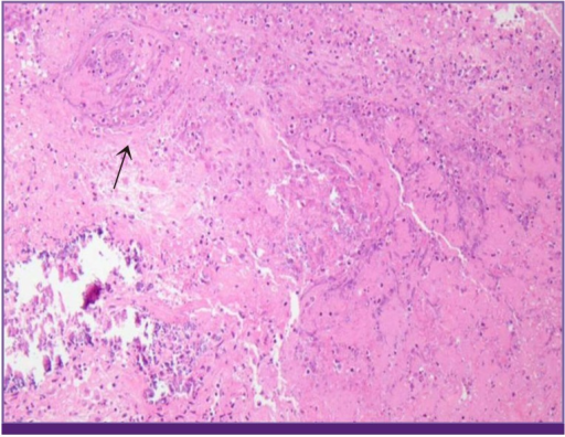 Hematoxylin and Eosin stain of brain biopsy at frontal lobe subcortical white matter lesion. Chronic granulomatous inflammation is visible in the arrow mark.