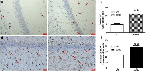 Pathological changes in hippocampus of db/db and WT mice. Apoptosis was examined by the TUNEL assay ((a), WT mice; (b), db/db mice with cognitive decline). Astrogliosis was evaluated by the GFAP method ((d), WT mice; (e), db/db mice). The numbers of TUNEL and GFAP-positive cells were counted blindly, as shown in (c and F), and an average was taken from five different fields of hippocampus in each group of mice (n = 4, Scale bars = 100 μm.). Significant level: **P < 0.01