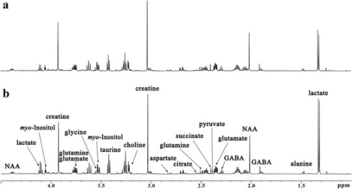 Representative 600 MHz 1H NMR spectra of hippocampus extracts from WT mice (a, n = 11) and db/db mice (b, n = 7)