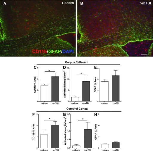 Post-imaging neuroinflammation in the corpus callosum and cortex after r-mTBI. Immunohistochemistry was used to detect microglia/macrophage cells with CD11b and astrocytes with GFAP in mice perfused after the final imaging scan, that is, 6 weeks post-injury or sham procedure. (A and B) Slight astrogliosis and microglia/macrophage activation were evident in r-mTBI mice (B) compared to r-sham mice (A). (C–H) Quantitative analysis shows a significant increase in microglial activation in the corpus callosum of r-mTBI mice relative to sham (C and D). Astrogliosis in the corpus callosum was not significantly increased after r-mTBI (E). In the cortex, the r-mTBI mice had a significant increase in the area of CD11b immunolabeling and in the number of activated microglia (F and G). Astrogliosis in the medial cortex was not significantly increased after r-mTBI (H). Dashed lines outline the corpus callosum. Values are mean ± standard error of the mean; n = 5; scale bar = 50 μm; *p < 0.05. DAPI, 4′,6-diamidino-2-phenylindole; GFAP, glial fibrillary acidic protein; r-mTBI, repetitive mild traumatic brain injury; r-sham, repetitive sham.