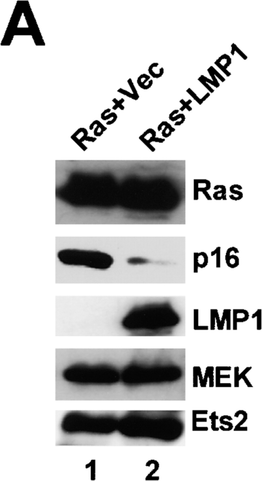 LMP1 blocks Ets2 binding to DNA. (A) Early passage (38 PDLs) HDFs expressing ecotropic receptor were infected with a retrovirus encoding H-RasV12 and sequentially infected with a retrovirus encoding LMP1 (lane 2) or control vector (lane 1). 4 d after superinfection, levels of a series of endogenous proteins were examined by immunoblotting using antibodies shown right. MEK was used here as a loading control. (B) Dose-dependent ability of LMP1 and E2DBD to block activation of the p16INK4a promoter (left) or E36 promoter (right) by Ets2 and activated MEK in SVts8 cells. Expression plasmids encoding proteins shown bottom were introduced into SVts8 cells along with 0.2 μg of MMLV-lacZ plasmid. Luciferase activities were normalized by lac-Z activities. Error bars indicate SD. (C) ChIP assays were performed using cells described in A and antibody against Ets2 or SEI-1 (control). The p16INK4a-promoter was recovered by PCR using primers flanking the Ets binding sites in the human p16INK4a promoter.