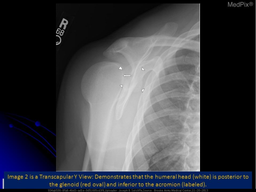 Image 2 is a transcapular Y view, which demonstrates that the humeral head (arrow) is posterior to the glenoid (arrowheads) and inferior to the acromion.