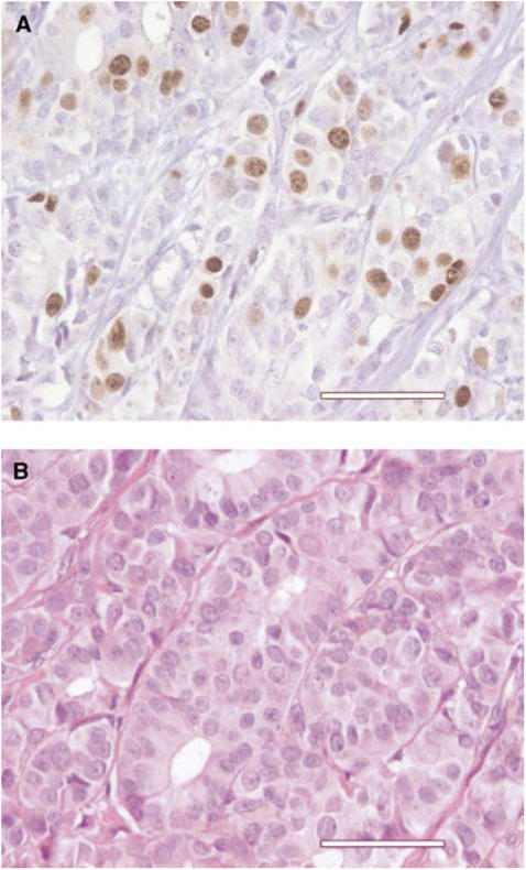 Nuclear immunostaining (Topo IIα) of 25% cells in a Holland's bouin-fixed paraffin-embedded microbiopsy of an invasive ductal carcinoma NOS using monoclonal antibody Ki-S7 specific for topoisomerase IIα (A). Haematoxylin eosin saffron stain of the same case (B). Scale bar=50 μm.