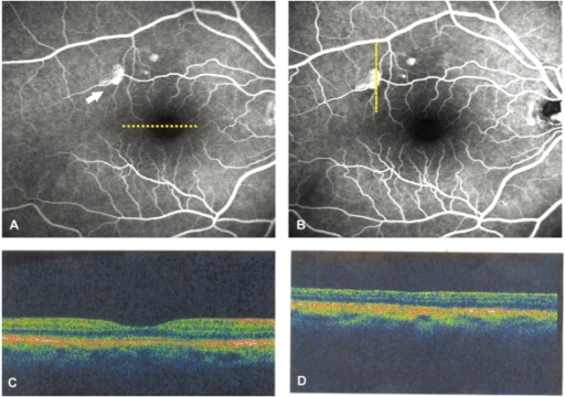 Follow-up examination 6 months following the first clinic visit shows complete resolution of the serous detachment of macula. (A) Early phase fluorescein angiogram shows three hyperfluorescent spots (arrow), not seen on previous exam, and (B) late phase fluorescein angiogram shows one of the points leaking slightly and two fade out slowly. Horizontal (C) and vertical (D) crosshair scan of optical coherence tomography at fovea and the leakage point show no serous detachment or pigment epithelium detachment.