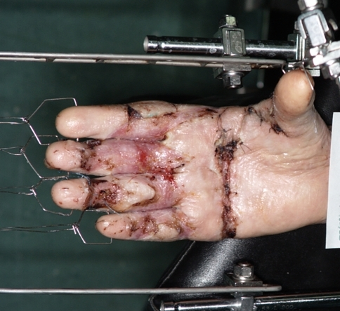 After releasing the contractures, skin grafting and assembling the frame, slow distraction was started and continued until complete finger extension was obtained. During the first 4 weeks, only distraction was applied