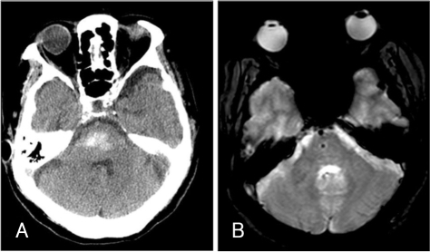 CT and GRE images of case 2. A: Acute pontine hemorrhag | Open-i