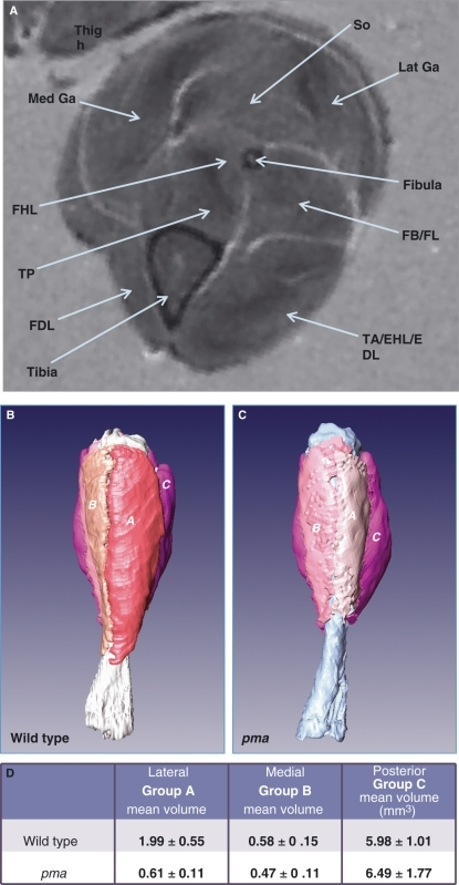 μMRI of shank muscles of legs of 3-week-old wild-type | Open-i