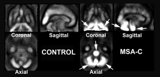Averaged images of contraction maps calculated from high-dimension-warping in the groups of normal controls and MSA-C patients. In the group of MSA-C patients contraction images showed greater absolute values of negative log J indicating severer atrophy in the whole cerebellum and pons than in other areas (arrows). Normal controls did not show severer atrophy in the cerebellum and pons than in other areas.