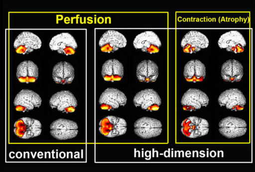 Group comparison of warped SPECT and contraction images between MSA-C patients and normal controls. High-dimension-warping demonstrates significantly decreased perfusion and significant contraction indicating local atrophy as a colored map in the whole cerebellum and pons of MSA-C patients as compared to normal controls. Conventional warping also demonstrated significantly decreased perfusion in the same area as in the high-dimension warping.