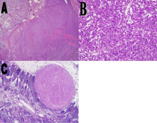 (A) A spindle cell neoplasm arising from the wall of the small bowel and pushing the mucosa toward the lumen, (B) spindle cells with mild to moderate degree of pleomorphism and few conspicuous nuclei, and (C) a spindle cell metastatic focus in a mesenteric lymph node (hematoxylin and eosin; (A) ×2, (B) ×20, (C) ×4).