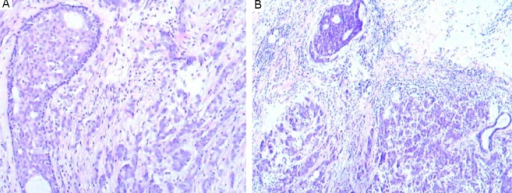 Ductal carcinoma in situ was admixed with the IDC-NOS in the right breast (A) (H&E stain, ×100). Ductal carcinoma in situ was adjacent to the IDC-NOS in the left breast (B) (H&E stain, ×40).