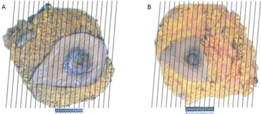 Case two. Breast mastectomy specimens and the dissection method: right (A) and left (B).