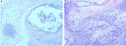 Ductal carcinoma in situ was adjacent to the apocrine carcinoma of the right breast (A) (H&E stain, ×40). Ductal carcinoma in situ was admixed with the apocrine carcinoma of the left breast (B) (H&E stain, ×40).