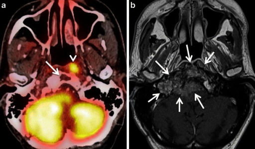a Axial PET/CT image shows asymmetric uptake in the nasopharynx (arrowhead) and expected high uptake in the explored hindbrain. A lytic lesion in the clivus with well-defined sclerotic borders and without FDG uptake is also detected (arrow). The remaining of the total body PET/CT was normal. b Corresponding axial contrast-enhanced T1weighted MR image obtained in the same patient illustrates an infiltrative, poorly delineated tumour invading the clivus, the right jugular fossa, the right petrous apex and the brainstem (arrows), not revealed by PET/CT. Subsequent biopsy of the clivus, intracranially and of the nasopharynx showed a primary adenocarcinoma of the skull base. The increased FDG uptake in the left nasopharynx corresponds to tumour invasion of the longus colli muscle. Due to intratumoral areas with variable FDG avidity and due to tumor vicinity to the highly metabolic brain parenchyma, this lesion is less well depicted by PET/CT than MRI