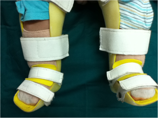 Representative image of the final therapy outcome with correction of forefoot adduction and hindfoot varus deformities to a neutral or overcorrected position. Nine months after treatment, the Pirani score was 0.25.