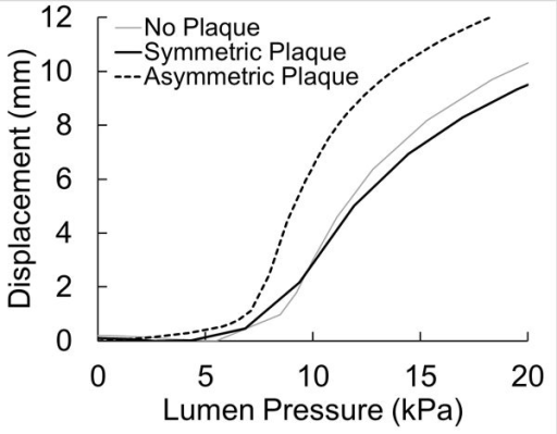 Buckling displacement (maximum deflection at the middle) plotted as function of lumen pressure of a normal artery, artery with symmetric plaque, and artery with an asymmetric plaque.