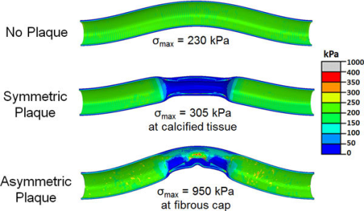 von Mises stress distribution in the artery lumen and the plaque (longitudinal-section view) for a normal artery, artery with symmetric plaque and artery with asymmetric plaque at a lumen pressure of 100 mmHg.