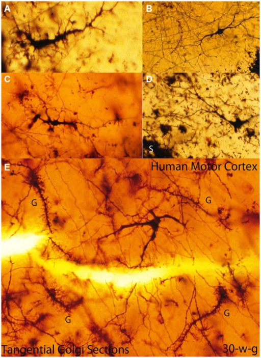 Composite figure of photomicrographs of tangentially cut Golgi preparations of the motor cortex first lamina of 30-w-o fetuses showing the actual multipolar morphology of C-RCs' bodies (A-E), the first lamina special glial (g) often referred as comet cells (E) and the crisscrossing of fine axonic terminals (H) through the lamina upper region. (From: Marín-Padilla, 1990).