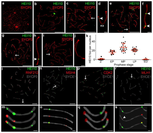 HEI10 localization to synaptonemal complexes and crossover sites. (a–j) Representative SIM images of wild-type spermatocyte nuclei immunostained for HEI10 (green) and SYCP3 (red) at (a) leptonema, (b) late zygonema, (c,d) early pachynema, (e,f) mid pachynema, (g,h) late pachynema, and (i,j) early diplonema. (d, f, h, j) Magnified views of the chromosomes indicated by arrows in c, e, g, i, respectively. Arrowheads highlight HEI10 foci. (k) Numbers of HEI10 foci per nucleus at successive prophase stages (Z, zygonema; EP, early pachynema; MP, mid pachynema; LP, late pachynema; ED, early diplonema). Horizontal bars represent means ± s.d. Numbers of nuclei analyzed at Z, EP, MP, LP and ED, respectively: 13, 8, 22, 20 and 11. (l,m) Mid-pachytene spermatocyte immunostained for HEI10 (green), RNF212 (red), and SYCP3 (grey). (m) Magnified view of the chromosome indicated by the arrow in l. (n,o) Mid-pachytene spermatocyte immunostained for HEI10 (green), MSH4 (red) and synaptonemal complex central element protein, SYCE1 (grey). (o) Magnified view of the chromosome indicated by the arrow in n. (p,q) Mid-pachytene spermatocyte immunostained for HEI10 (green), CDK2 (red), and SYCE1 (grey). (q) Magnified view of the chromosome indicated by the arrow in p. (r,s) Mid-pachytene spermatocyte immunostained for HEI10 (green), MLH1 (red), and SYCE1 (grey). (s) Magnified view of the chromosome indicated by the arrow in r. The arrowhead highlights a small MLH1 focus that colocalizes with HEI10.Scale bars, 10 μm in a, b, c, e, g, i, l, n, p, r; 1 μm in d, f, h, j, m, o, q, s.