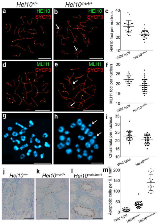 Dosage sensitivity of the HEI10 crossover function. (a,b) Mid-pachytene nuclei from (a) wild-type (Hei10+/+) and (b) Hei10+/mei4 heterozygous mice immunostained for HEI10 (green) and SYCP3 (red). The arrows in b highlight chromosomes that lack HEI10 foci. (c) Numbers of HEI10 foci (± s.d.) per nucleus in mid-pachytene cells (23 wild-type and 33 Hei10+/mei4 nuclei). (d,e) Mid-pachytene nuclei from (d) wild-type and (e) Hei10+/mei4 heterozygous mice immunostained for MLH1 and SYCP3. The arrows in e highlight chromosomes that lack MLH1 foci. (f) Numbers of MLH1 foci per nucleus (± s.d.) in mid-pachytene cells (20 wild-type and 23 Hei10+/mei4 nuclei). (g, h) Chromosome spreads of diakinesis/metaphase I spermatocytes from (g) wild-type and (h) Hei10+/mei4 heterozygous mice stained with DAPI. (i) Numbers of chiasmata per nucleus (± s.d.) in diakinesis/metaphase I spermatocytes (25 wild-type and 29 Hei10+/mei4 nuclei). (j–l) TUNEL stained testis sections from (j) Hei10+/+, (k) Hei10+/mei4 and (l) Hei10mei4mei4 animals. (m) Quantification of TUNEL-positive apoptotic cells (± s.d.) in spermatocyte sections.Scale bars, 10 μm in a,b,d,e,g,h and 100 μm in j,k,l.