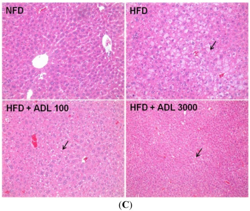 Histology of epididymal adipose (A) and liver (C) tissues of mice fed experimental diets for six weeks (magnification= ×200). Normal-fat diet (NFD), high-fat diet (HFD), high-fat diet with 100 mg·kg−1·day−1Allomirina dichotoma larva suspension (HFD + ADL 100), and HFD with 3000 mg·kg−1·day−1 ADL (HFD + ADL 3000). Epididymal adipose cell volume measured by IMT i-Solution Lite program (B). Histopathology of the liver with steatosis. Arrows indicate the macrovesicular lipid droplets in the cytoplasm of hepatocytes (C). Results are expressed as mean ± SD (n = 3). Statistical significance was evaluated by Duncan post-hoc test in ANOVA. p < 0.001 and p < 0.01, compared to the high-fat diet group.