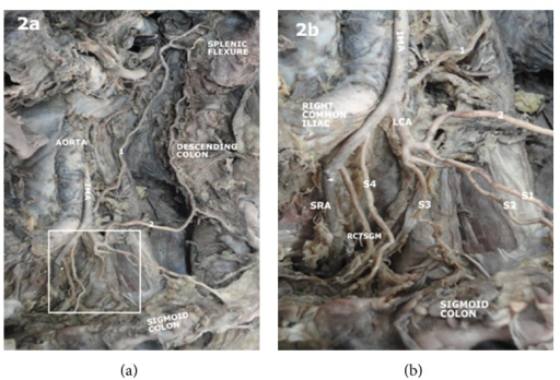 Photograph of the posterior abdominal wall showing the aorta and inferior mesenteric artery as well as its branches (a). The insert is shown in (b). Inferior mesenteric artery (IMA) gave off a left colic artery (LCA) which gave off a transverse branch to the descending colon and proceeded to give three sigmoid arteries (S1, S2, S3) it then proceeds to give a rectosigmoid branch (RCTSGM) and superior rectal artery (SRA).