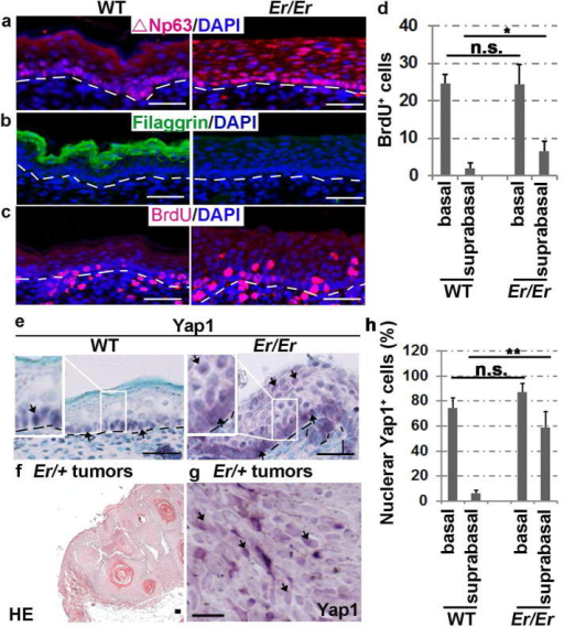 Enriched nuclear localization of Yap1 in Er/Er epidermis and induced skin tumors(a–c) Immunofluorescence staining for ΔNp63 (a), filaggrin (b) and BrdU (c) in the E18.5 Er/Er epidermis (right) compared with the WT control (left). (d) Quantification of BrdU+ cells. The number of BrdU+ cells per 500 μm of fixed length parallel to the epidermis surface was counted. Two-tail t-test: *p<0.05, N=5 embryos. n.s., not significant. (e) Immunohistochemical staining of Yap1. H&E staining (f) and Yap1 cellular localization (brown) detected by immunohistochemical staining (g) of DMBA/TPA-induced tumors derived from Er/+ mice. The scale bars represent 50 μm in (a–f) and 150 μm in (g). The arrows indicate Yap1-positive cells in (e) and (g). (h) Quantification of nuclear Yap1-positive cells. Two-tail t-test: **p<0.01, N=3 embryos.