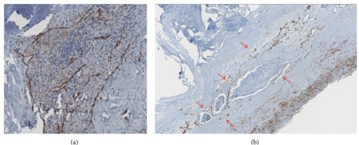 (a) Histopathological preparation of a carotid atherosclerotic plaque colored with CD31 endothelial-specific stain (brown) showing the close correlation between plaque vascularization and the inflammatory response. (b) Histopathological preparation of a carotid atherosclerotic plaque colored with CD31 endothelial-specific stain (brown) showing larger microvessels (red arrows) and areas of plaque hemorrhage.