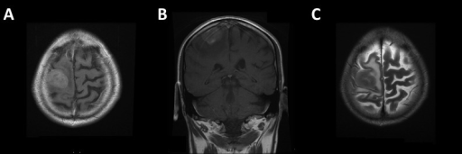 MR images showing solitary intrinsic lesion centred around the pre-central gyrus, confirmed to be metastatic deposit of MPM on histological assessment.A/B: Post-gadolinium T1-weighted images; C: T2-weighted image