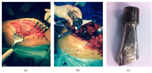 (a) An important pseudotumoral well-organized periprosthetic tissue reaction was found surrounding the joint. (b, c) The rupture of the modular neck was confirmed; failure of the implant seemed to have originated on the anterior aspect of the tapper junction.