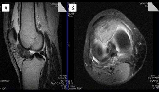 Magnetic resonance images of the right knee joint. T2-weighted fat-saturated, proton density sagittal (A) and axial (B) images showing a lobulated mass in the posterior aspect of the infrapatellar fat pad. The mass had hypointense signal intensity and extended into the intercondylar notch.
