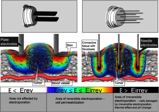 Electric field distribution in and around the tumor tissue during the application of electric pulses for plate (left) and hexagonal needle electrodes—cross section through the mid-plane of the electrodes (right). The electric field distribution is indicated with the rainbow color scale