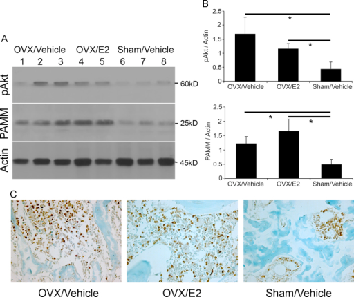 Ovariectomy increases PAMM abundance and Akt phosphorylation in bone. (A) Western blot analysis of protein extracts from distal femur shows increased PAMM expression and Akt phosphorylation in OVX/Vehicle group (n=3, lanes 1, 2, and 3) and OVX/E2 group (n=2, lanes 4 and 5) compared to Sham/Vehicle mice (n=3, lanes 6, 7, and 8). (B) PAMM and pAkt are increased in OVX group compare with Sham group (*p<0.05). There is a trend toward increased PAMM expression with E2 treatment in OVX mice. (C) Expression of PAMM at the distal femur was also detected by immunohistochemistry 4 weeks after OVX or Sham-operated mice.