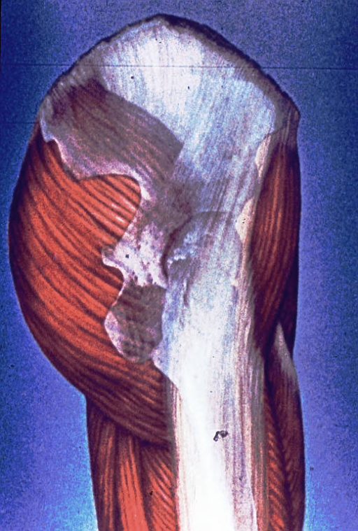 right hemi pelvis; femoral greater trochanter; hip socket