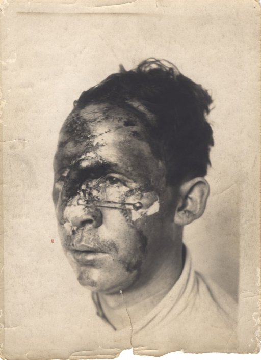 <p>Black and white photograph of injured soldier with massive head and facial wounds. The forehead and right side of the face are burned and scarred. There is a large wound on the left cheek which is connected to a wound on the soldier's nose by a metal instrument.</p>