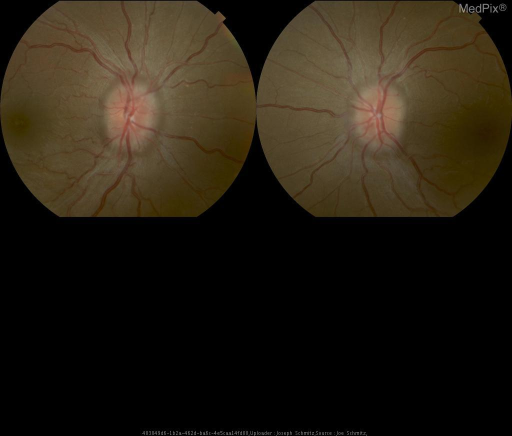 "Bilateral Papilledema with ""choked disks""."