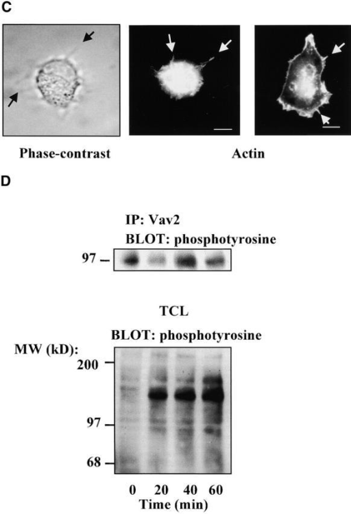 Effect of L342R/L343SVav2 on cell spreading. (A) NIH3T3 cells were transfected with vector alone or L342R/L343SVav2. 24 h after transfection they were trypsinized, allowed to recover, and then plated on fibronectin-coated coverslips. 15 or 60 min after plating the cells were fixed and stained for Vav2 expression with T7 antibody and with rhodamine-phalloidin. Cells were counted (100 per condition) and scored for spreading: unspread (black bar), partially spread (crossed bar), or fully spread (back-slash bar). Values are expressed as percent of total cells counted and represent the mean ± SEM of four experiments. (B) NIH3T3 cells were transfected with pEGFP and vector only, or L342R/L343SVav2 at a DNA ratio of 1:3 (pEGFP/Vav2 or vector). Cells were trypsinized 24 h after transfection, allowed to recover, and then plated on fibronectin. Cell spreading was monitored by phase contrast microscopy. Photographs were taken at 0, 10, 20, and 40 min (untransfected cell, white arrow; transfected cells, black arrows). These results are typical of 25 cells examined from 3 separate experiments. (C) NIH3T3 cells were transfected with pEGFP and L342R/L343SVav2, trypsinized 24 h later, allowed to recover, and then plated onto fibronectin-coated coverslips. Cells were examined for the presence of filopodia by phase contrast (left, black arrows indicate filopodia) or fixed and stained with rhodamine-phalloidin (middle). Untransfected cells were also plated and stained with rhodamine-phalloidin (right). (D) NIH3T3 cells were trypsinized, allowed to rest, then plated on fibronectin as described in Materials and methods. Cells were harvested at 0, 20, 40, and 60 min after plating, endogenous Vav2 was immunoprecipitated and tyrosine phosphorylation was determined by Western blotting. Total cell lysates (TCL) were also Western blotted for phosphotyrosine. These results are representative of three experiments. Bars, 10 μm.