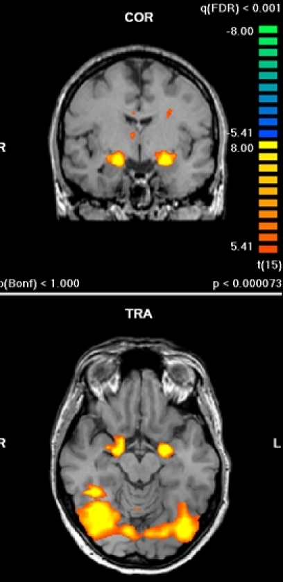 Bilateral activation of amygdala during perception of contempt and disgust expressions (shared activation; conjunction analysis).
