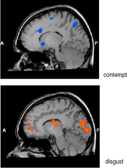Brain regions activated stronger in men than in women (blue color) or stronger in women than in men (orange color) in response to emotional expressions of contempt (above) or disgust (below).