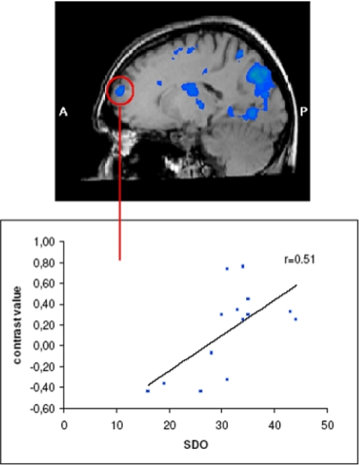 Brain regions activated stronger in men than in women for the contrast of contempt – disgust (there were no regions that were activated stronger in women for this contrast).Activation in the left superior frontal gyrus was associated with scores on the Social Dominance Orientation scale.