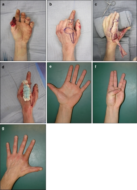 Reconstruction of a complete palmar distal phalanx defect (zone 4 defect) of the left hand in a manual worker caused by a circle saw. a Clinical aspect at admission to the hospital; b intraoperative aspect: planning the flap; c intraoperative aspect: raising the flap; d postoperative aspect: the donor site is grafted with a full-thickness skin graft, fixed by a tie-over dressing; e clinical aspect after 1 year: dorsal view (there is no restriction within the first web space); f clinical aspect after 1 year: palmar view (there is no restriction within the first web space); g clinical aspect after 1 year: Kapandji index 9/10