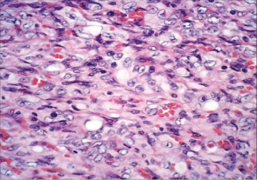 Photomicrograph shows cords of spindle-to-epithelioid cells in a myxoid stroma and prominent vacuoles, some of them containing red blood cells. (H&E, ×50)