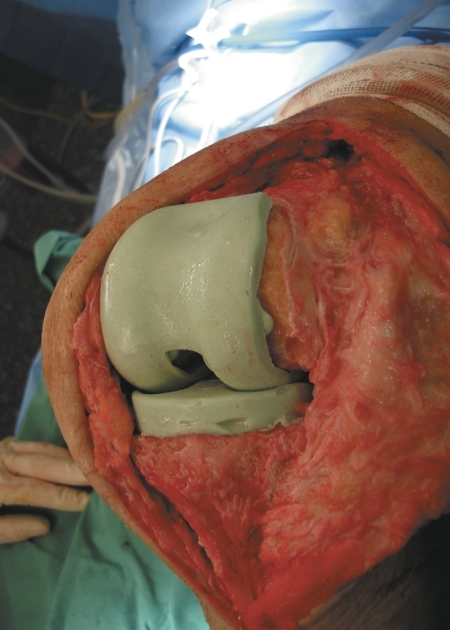 Implantation of the intraoperative molded PMMA knee spacer.
